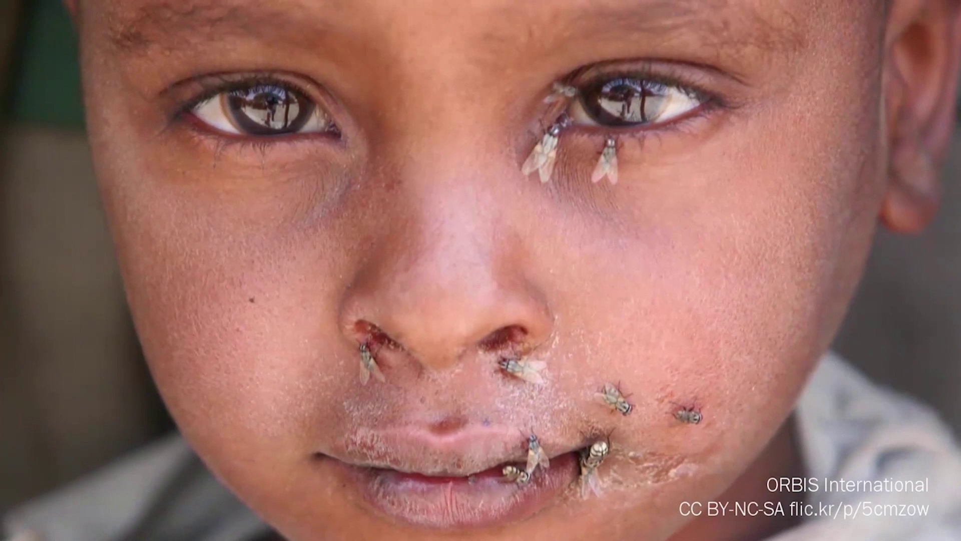 Trachoma: An introduction