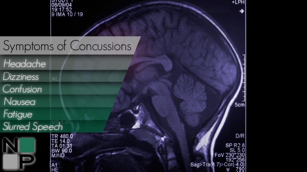 Symptoms of Concussions